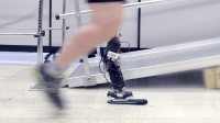 This unbelievable robotic-inspired Prosthetic promises Amputees An easier Stride