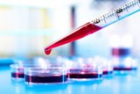 In First Distribution Deal, StemBioSys Teams with Funakoshi in Japan