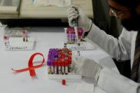 HIV researchers edge closer to a cure