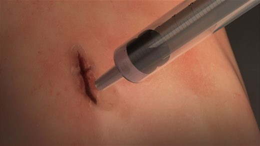Researchers create a fast-sealing surgical 'glue' for closing wounds