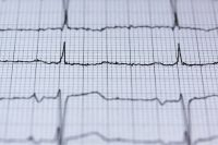 AI identifies 'invisible' heart condition LQTS