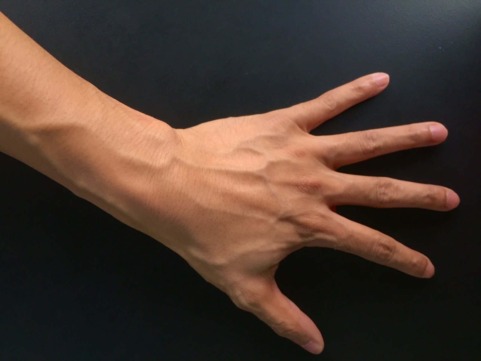 Hackers defeat vein authentication by making a fake hand | DeviceDaily.com