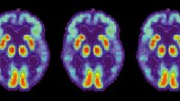 Artificial intelligence can detect Alzheimer's in brain scans six years before a diagnosis