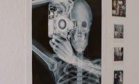 How Imaging Informatics is Transforming Healthcare Today